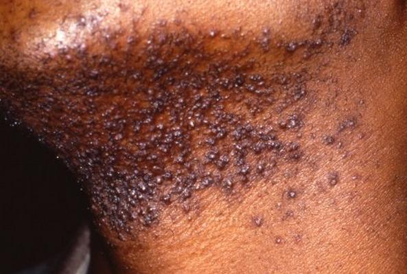 pseudofolliculitis